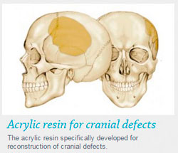 Acrylic resin for cranial defects