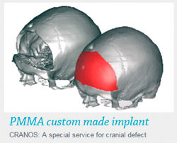PMMA custom made implant