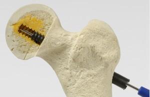 Локер - повна система з кістковим цементом для остеосинтезу
